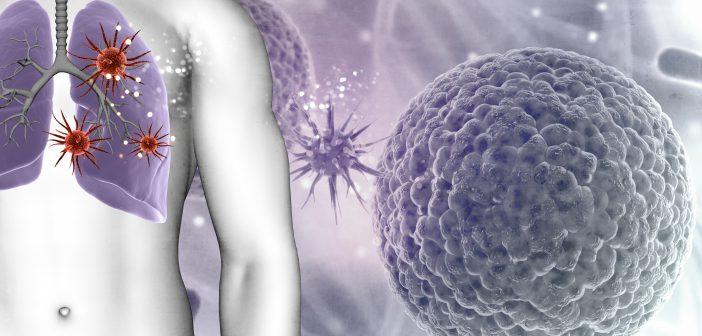 Jenis Kanker ini Rentan Menyerang Manusia | updatekareba ...